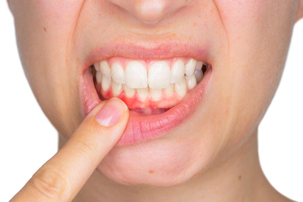 Sabes qué es la periodoncia